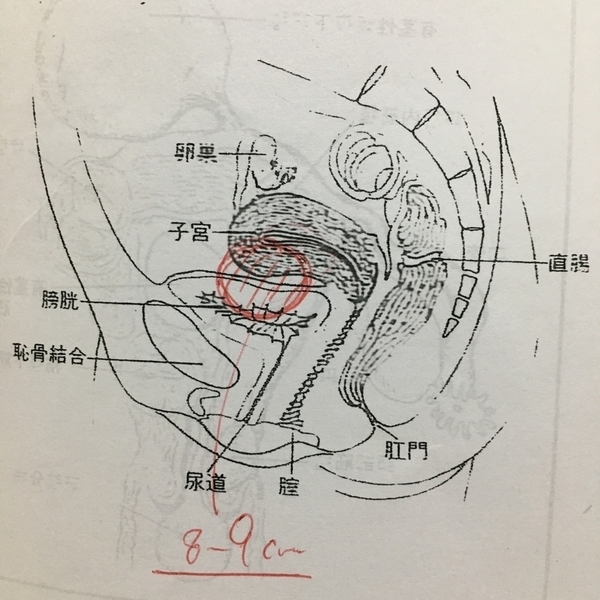 子宮筋腫 8cm 9cm 位置