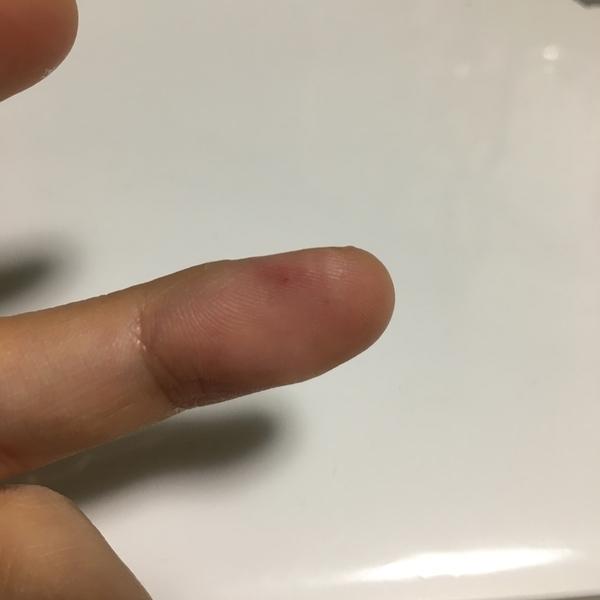 F chek卵巣年齢チェックキット ランセットの傷