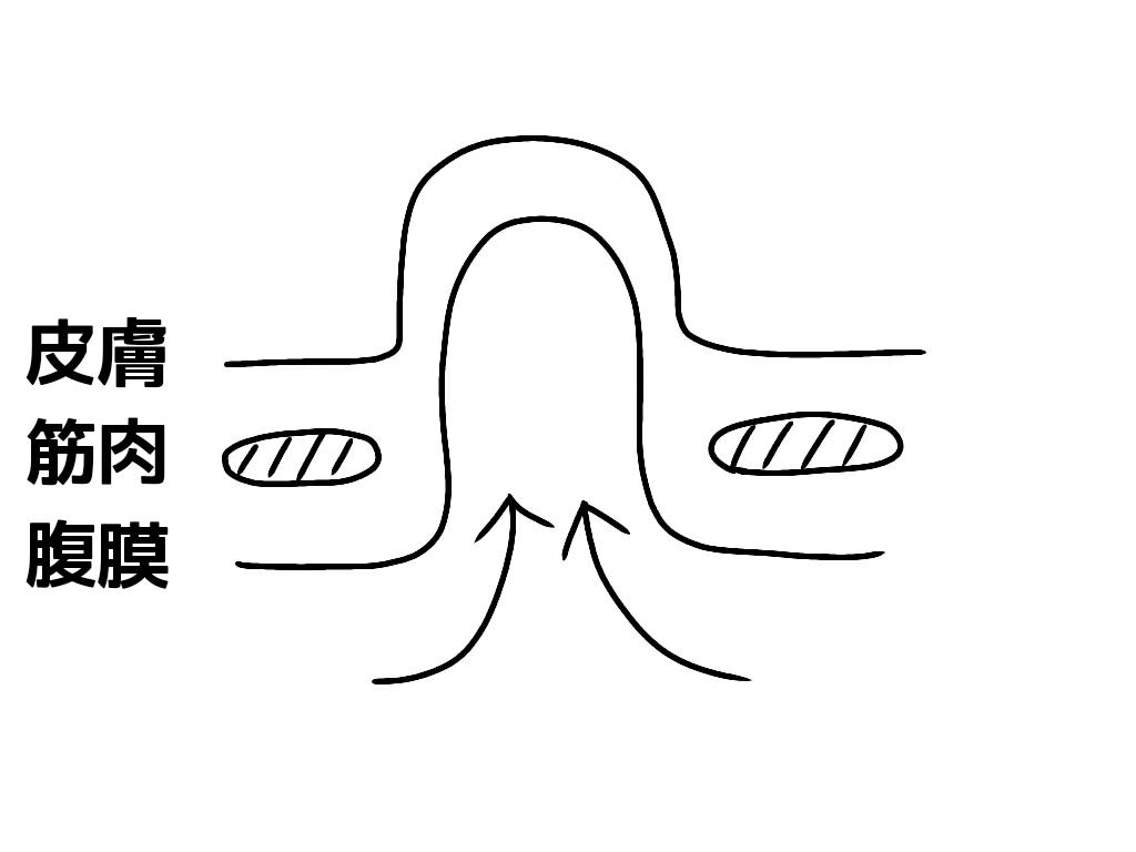 臍ヘルニアを横から見た図