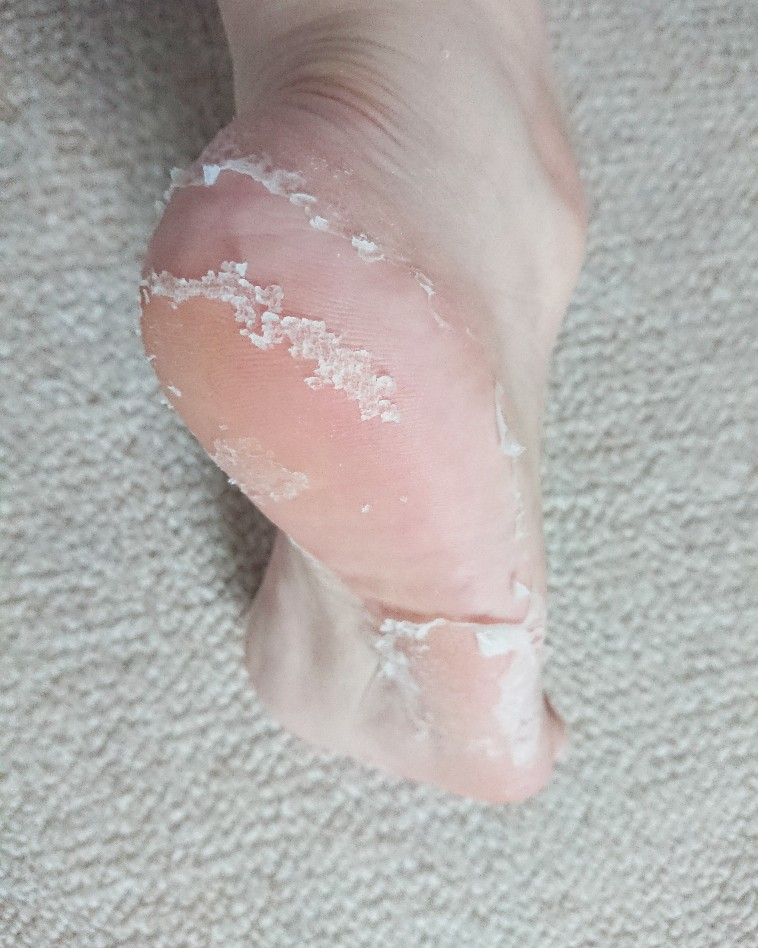 足の裏の皮がびろんびろんになっている