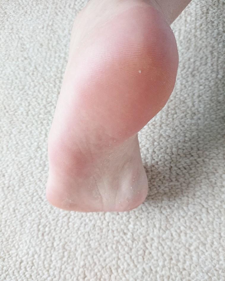つるんとキレイになった足