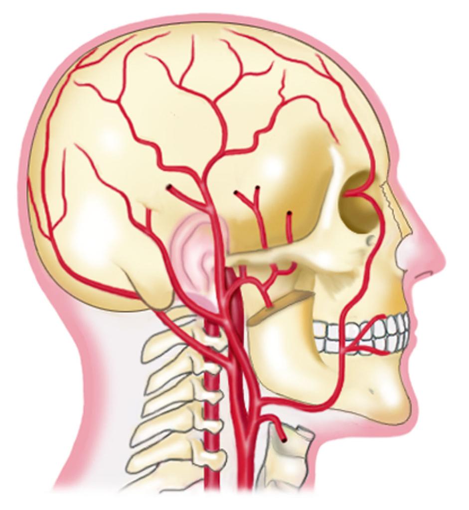頭部の血管イラスト