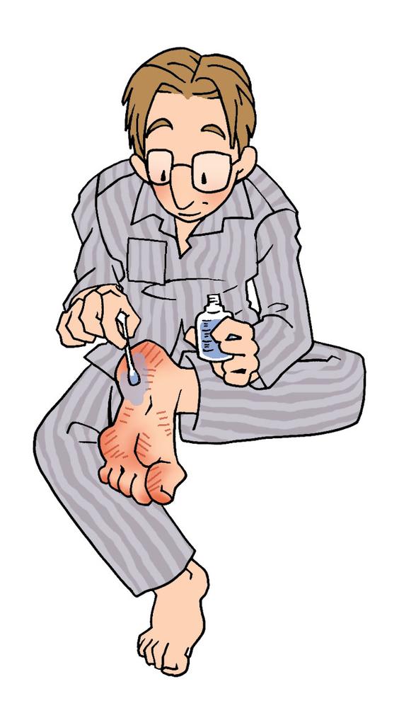 足裏のタコ