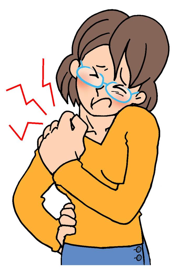 胸郭出口症候群の女性