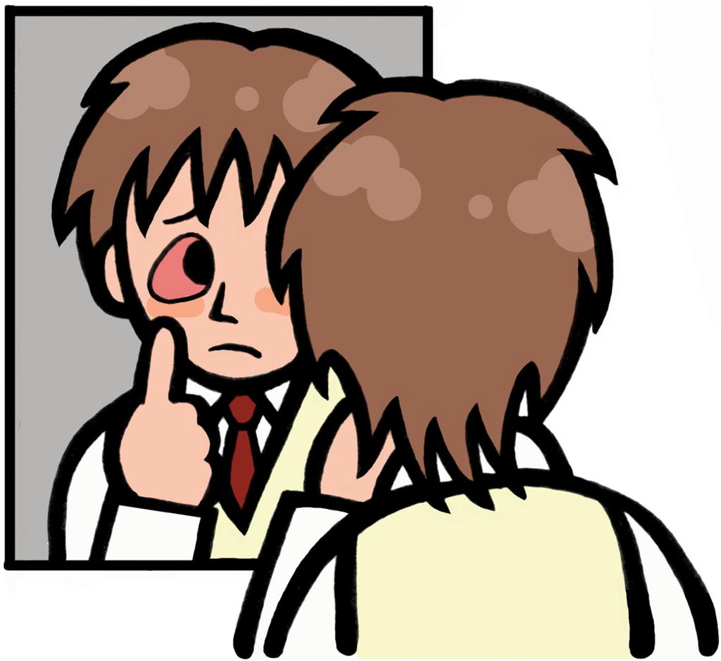 顔面神経麻痺による目の充血