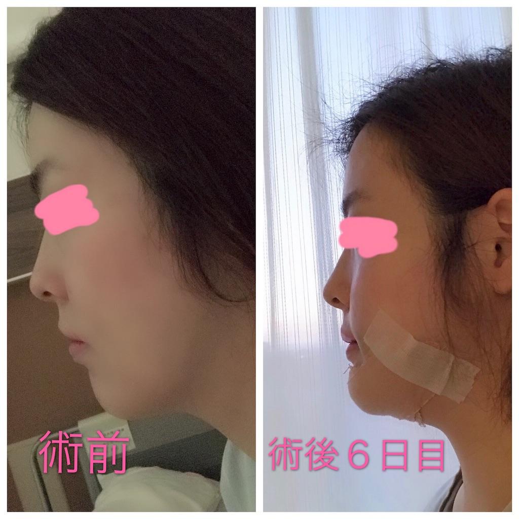 ブログ 症 顎 変形 手術