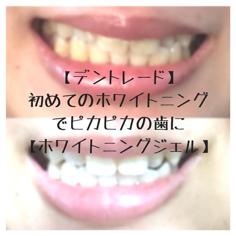 f:id:oriagi0926:20180413004323p:plain
