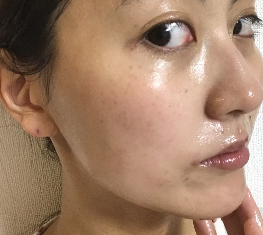 酵素パック実感セットを使用後の肌
