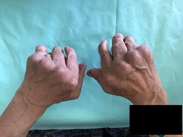 f:id:orthopaedicrheumatologist:20170426095125j:plain