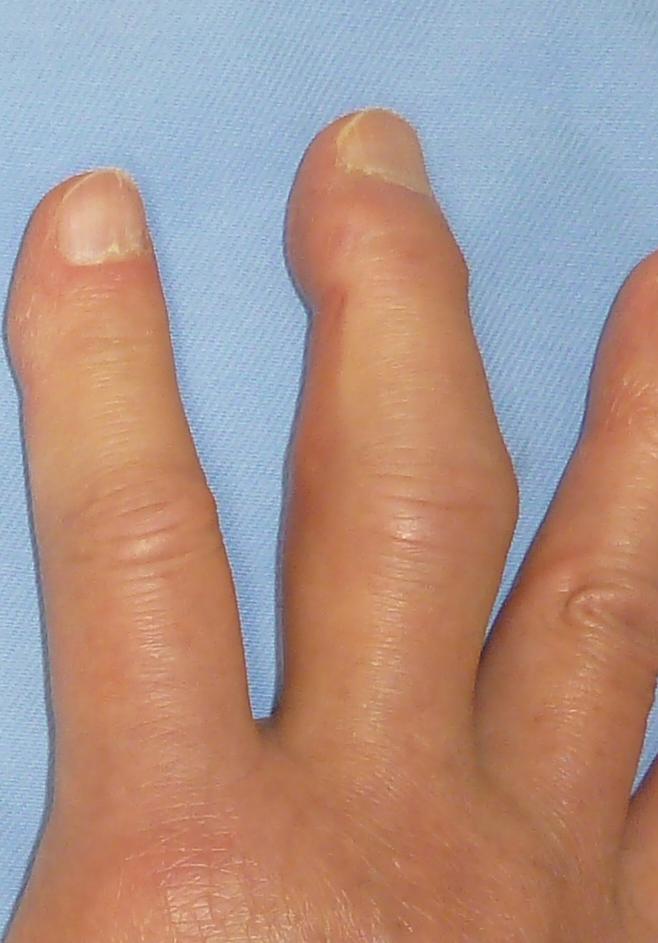 f:id:orthopaedicrheumatologist:20170616152450j:plain
