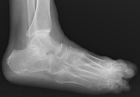 f:id:orthopaedicrheumatologist:20170726125628p:plain