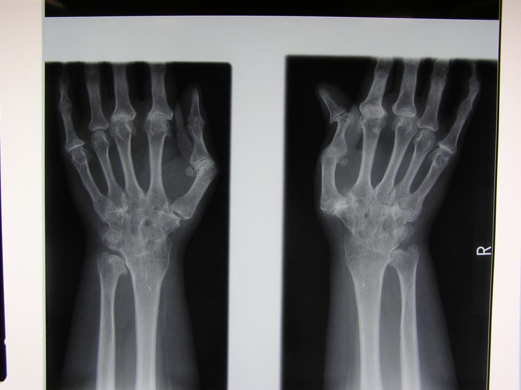 f:id:orthopaedicrheumatologist:20170929094132p:plain