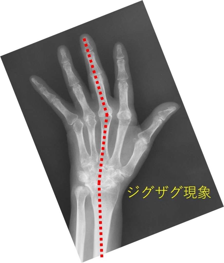 f:id:orthopaedicrheumatologist:20170929095239j:plain
