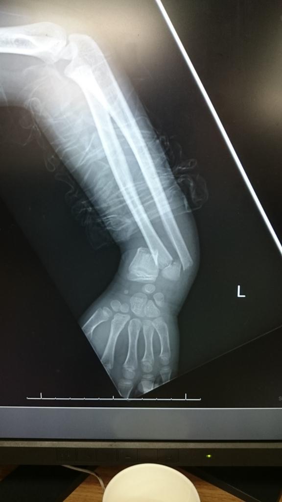 f:id:orthopaedicrheumatologist:20171014151344j:plain