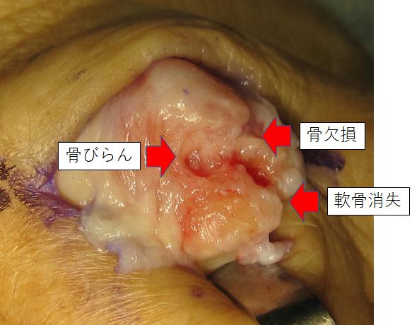 f:id:orthopaedicrheumatologist:20171018201549p:plain