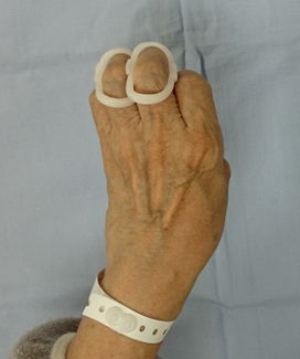 f:id:orthopaedicrheumatologist:20171117210118p:plain