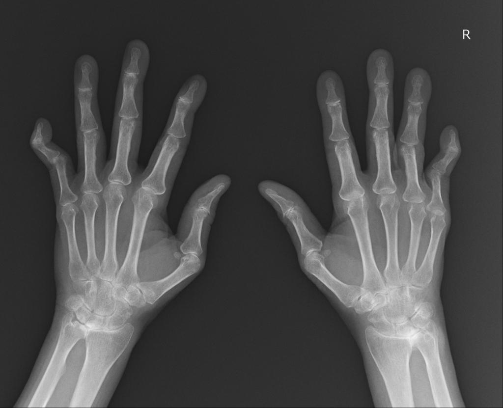 f:id:orthopaedicrheumatologist:20171213161517j:plain