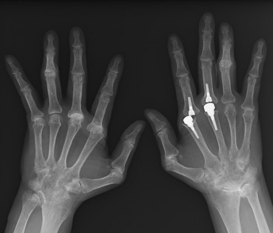 f:id:orthopaedicrheumatologist:20180508204440j:plain