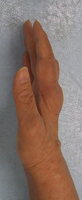 f:id:orthopaedicrheumatologist:20180508204622j:plain