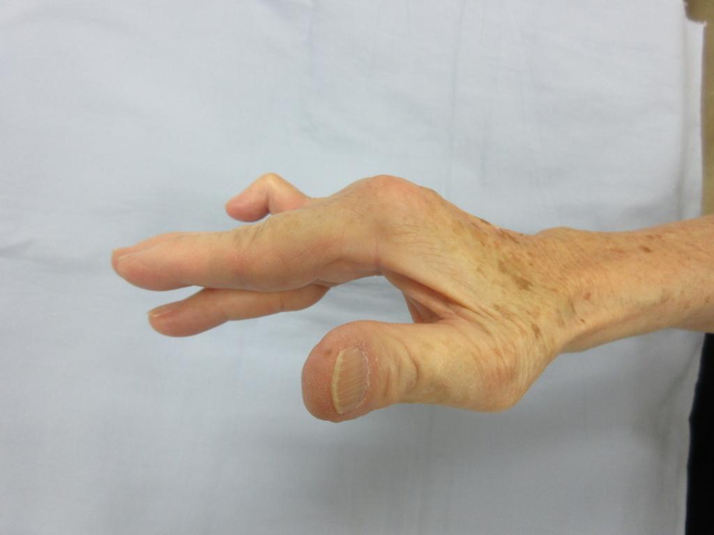 f:id:orthopaedicrheumatologist:20180806171123j:plain