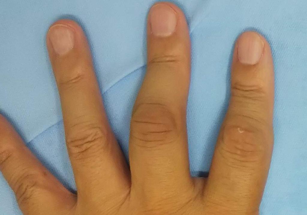 f:id:orthopaedicrheumatologist:20180808124942j:plain