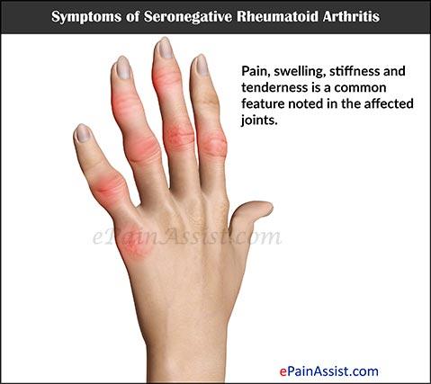 f:id:orthopaedicrheumatologist:20180926123708j:plain