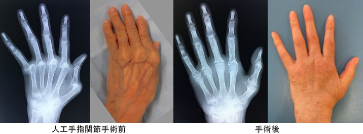 f:id:orthopaedicrheumatologist:20200120231818p:plain