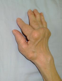 f:id:orthopaedicrheumatologist:20200206112617p:plain