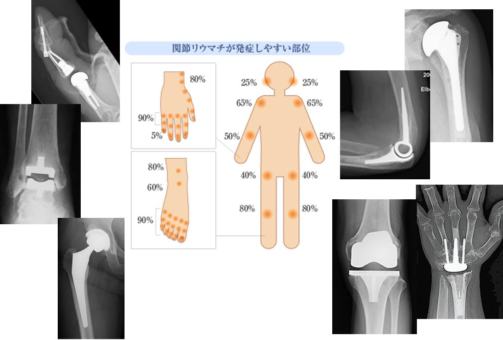 f:id:orthopaedicrheumatologist:20200820134254p:plain