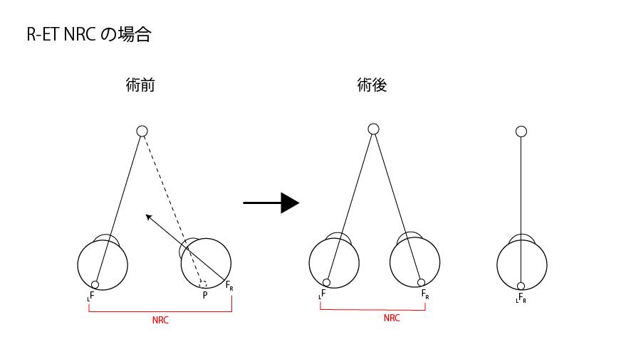 背理性複視 - ORT.com 視能訓練...