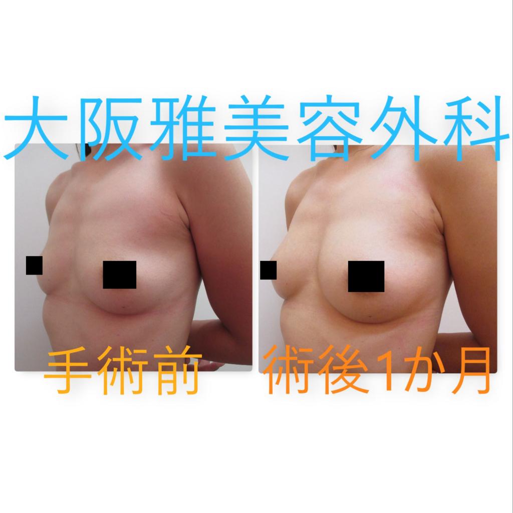 f:id:osaka_miyabi:20170901194220j:plain