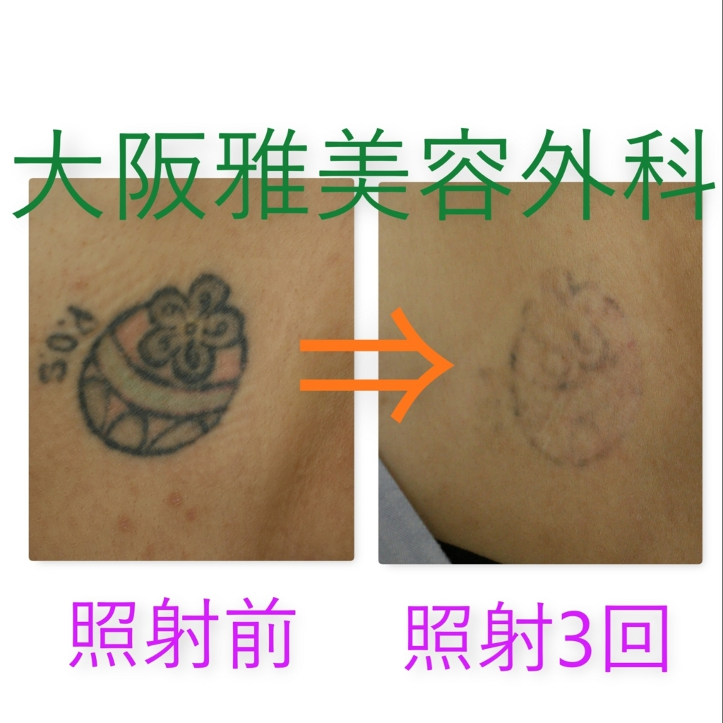 f:id:osaka_miyabi:20180410153607j:plain