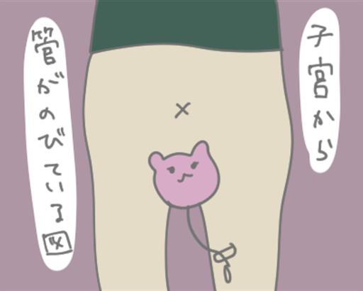 f:id:otabechan_t:20190313225425p:image