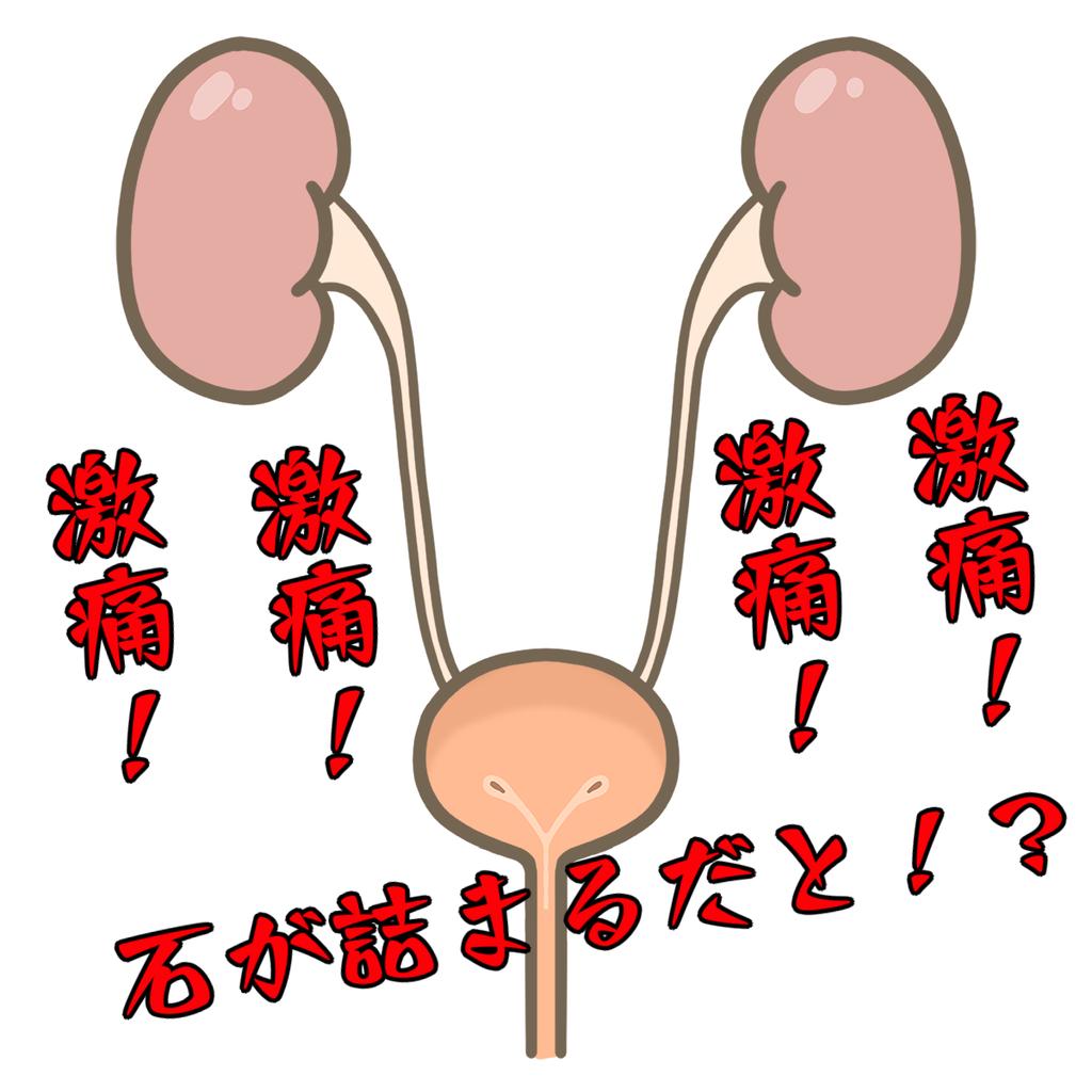 尿石症のアイキャッチ画像