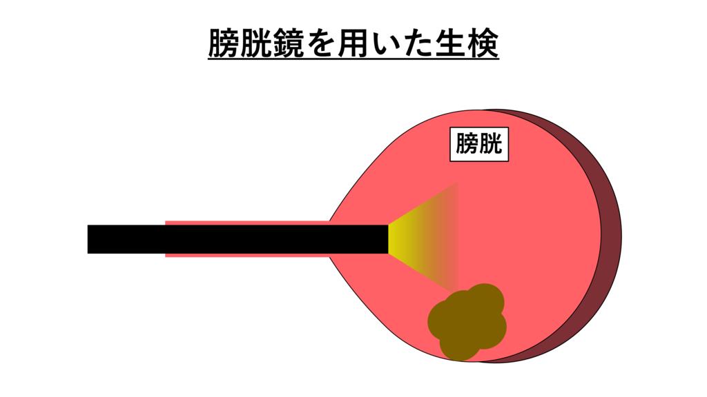 膀胱腫瘍のアイキャッチ画像