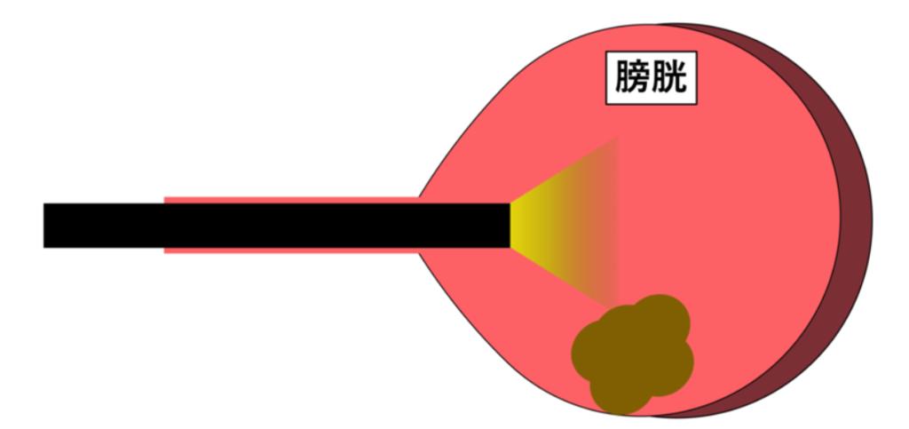 膀胱鏡を用いた生検(図解)