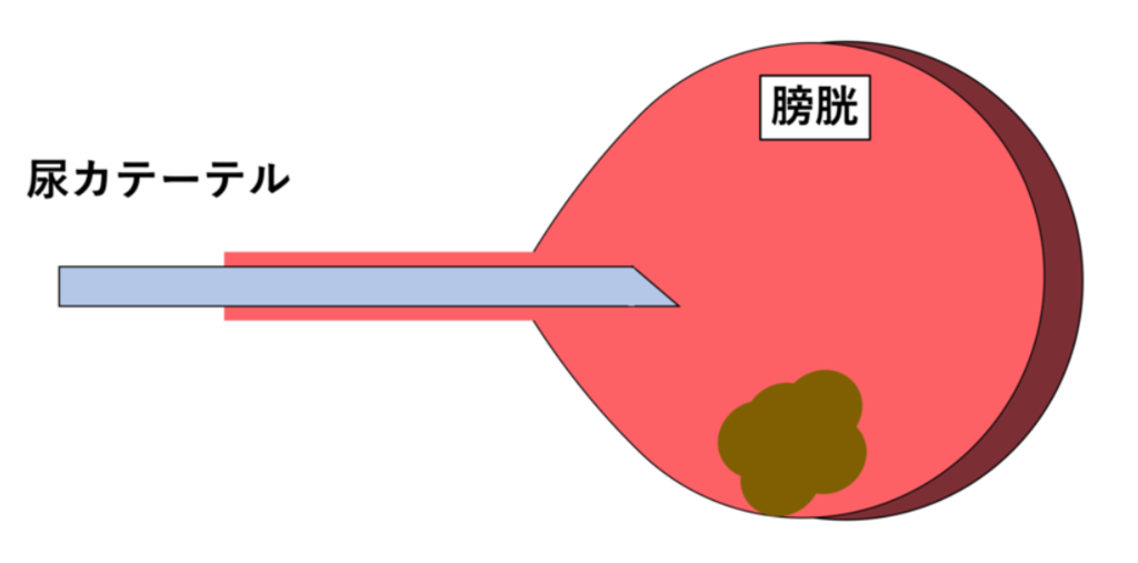 尿カテを用いた生検(図解)
