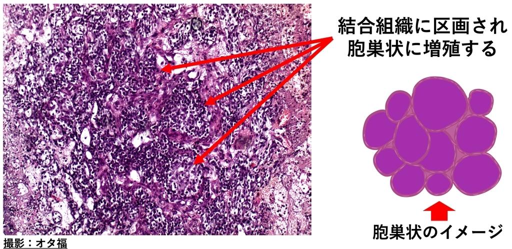 鼻腺癌の病理画像と所見