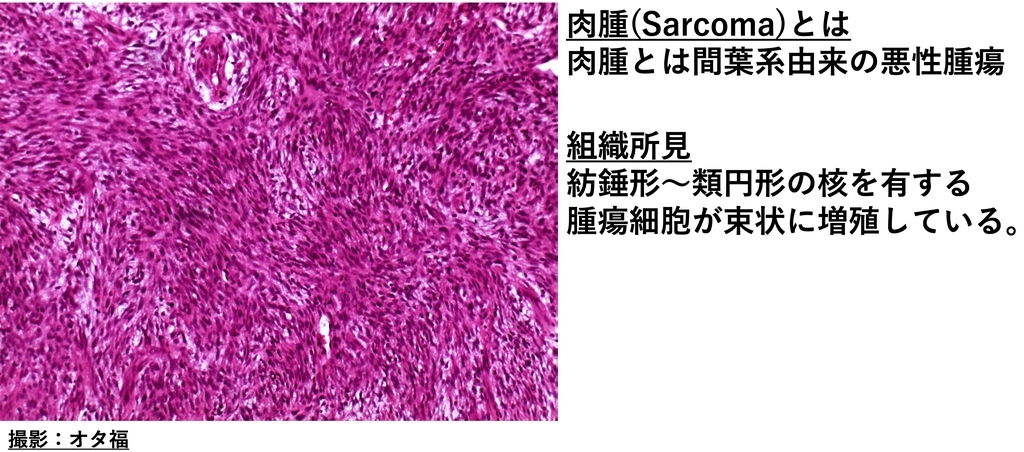 未分化肉腫の病理画像