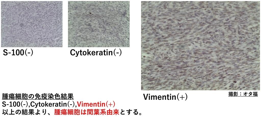 未分化肉腫の免疫染色結果