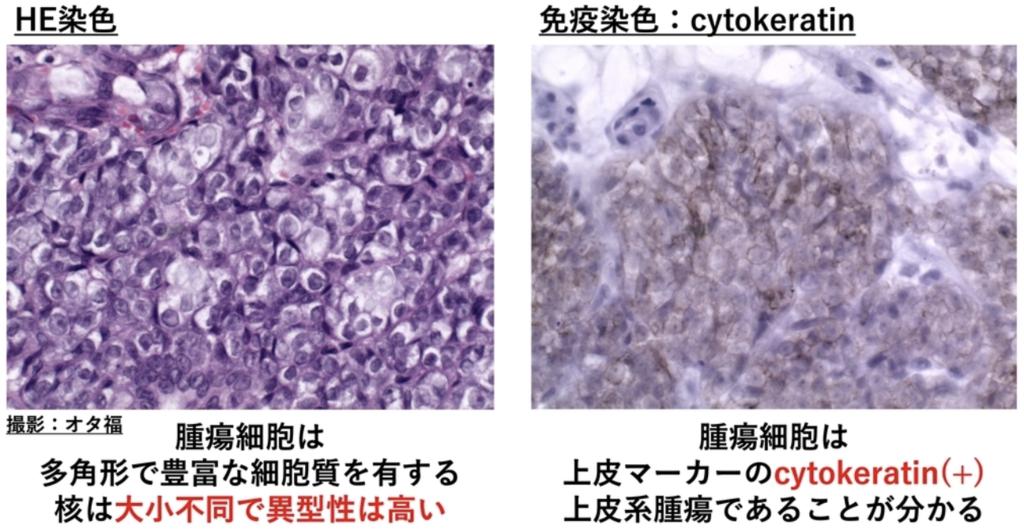 病理画像(強拡大)と免疫染色
