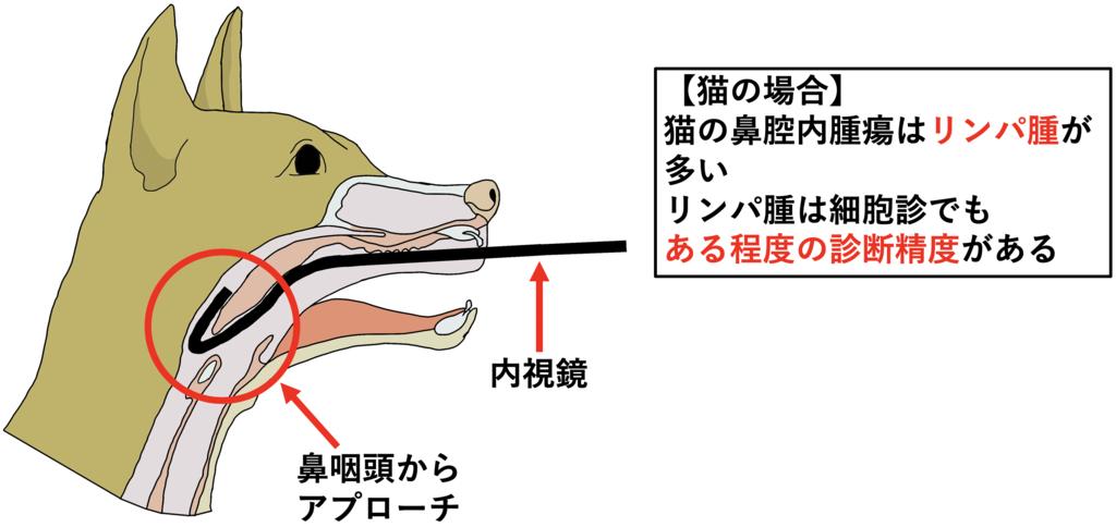 鼻咽頭からの生検