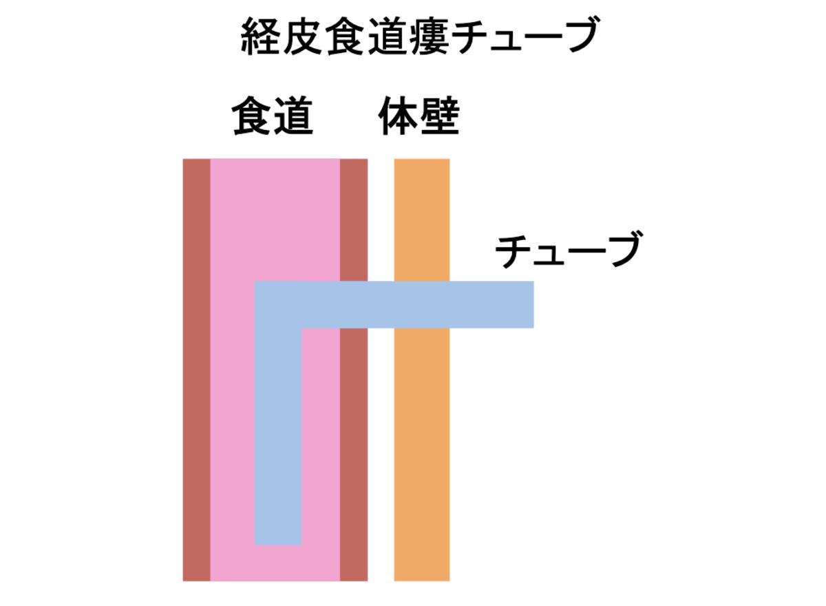 経皮食道瘻チューブ_図解