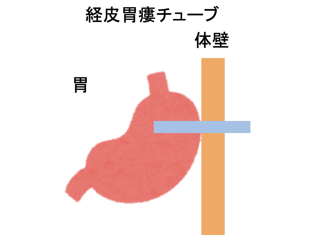 経皮胃瘻チューブ_図解