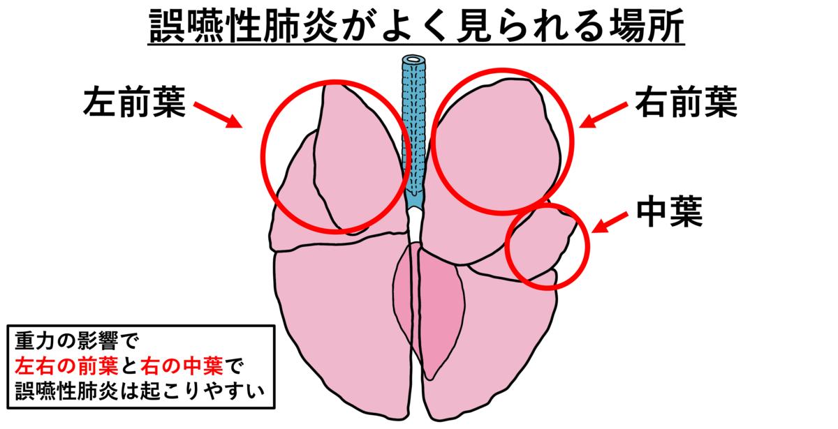 誤 嚥 性 肺炎 と は