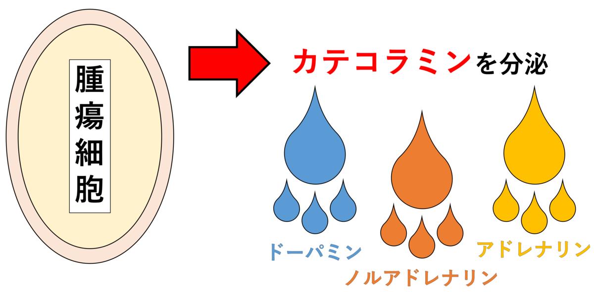 腫瘍細胞がカテコラミンを分泌する(図解)