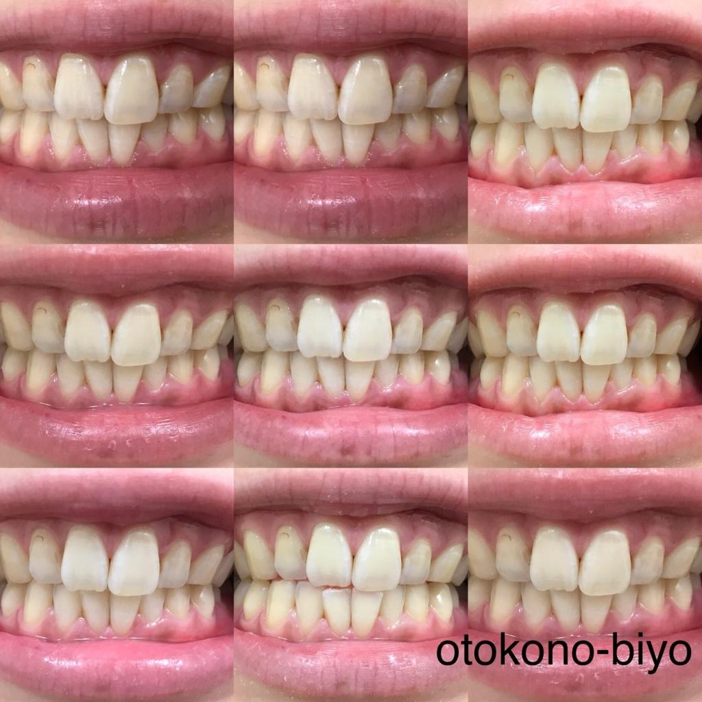 f:id:otokonobiyo:20180611131524j:plain