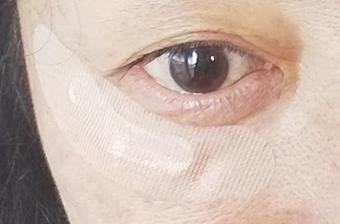 目の下に貼ったヒアロディープパッチ