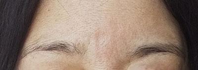 眉間のシワ