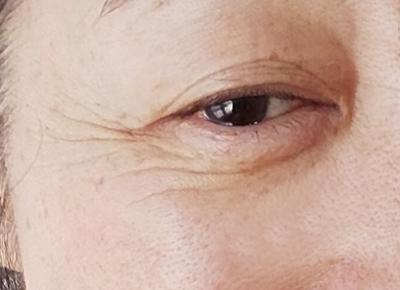 目尻のシワ